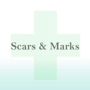 Scars & Marks